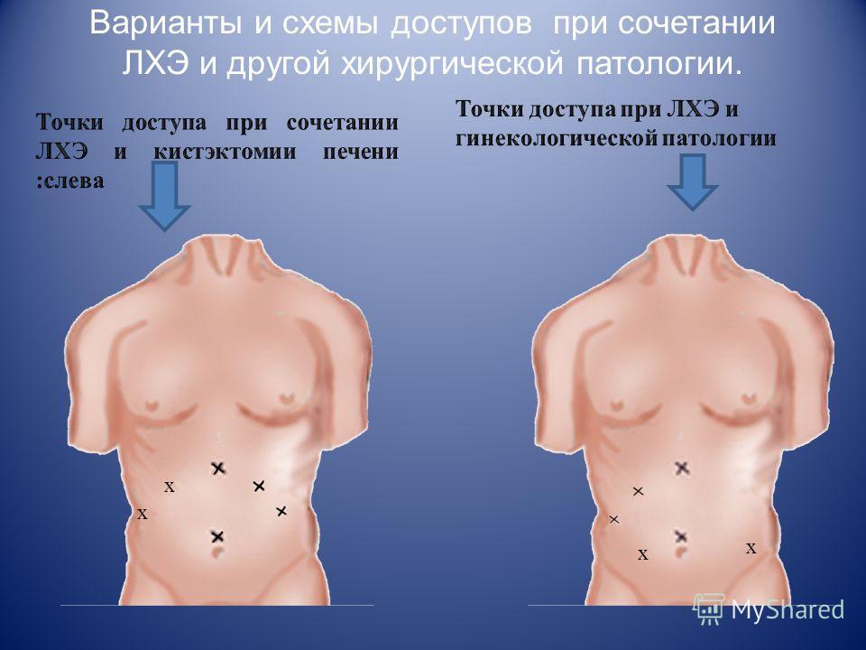 Варианты и схемы доступов при сочетании ЛХЭ и другой хирургисеской патологии. х х х х