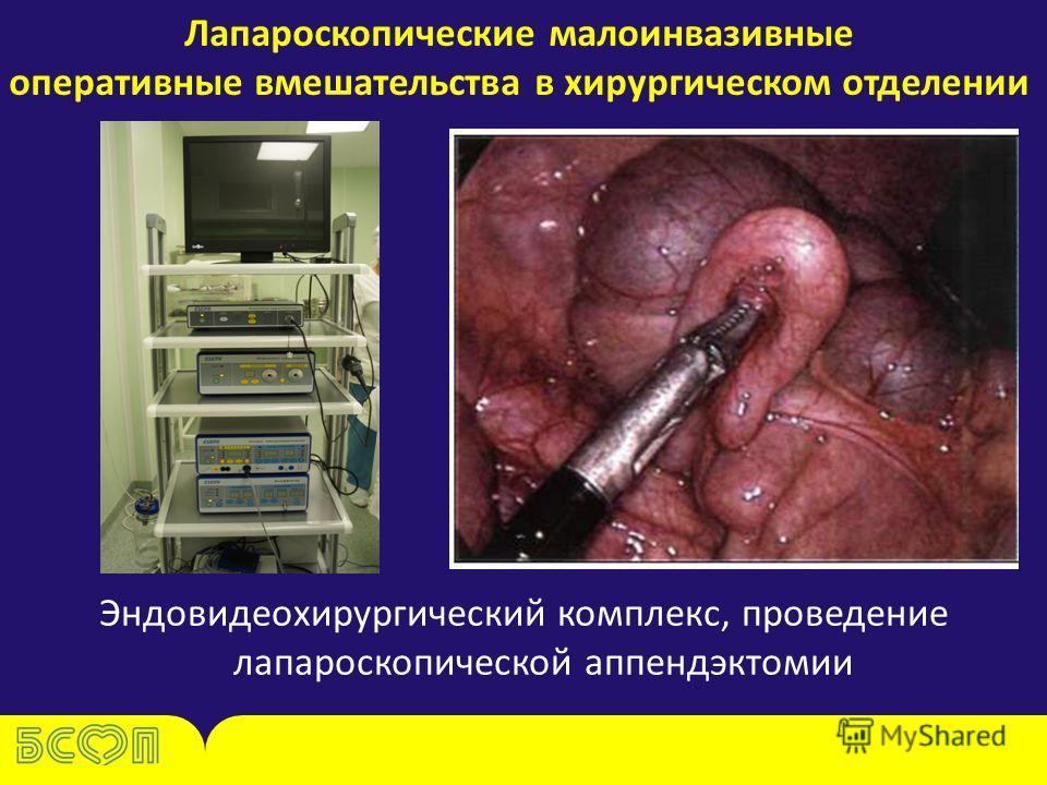 Лапароскопические малоинвазивные оперативные вмешательства в хирургическом отделении Эндовидеохирургический комплекс, проведение лапароскопической аппендэктомии