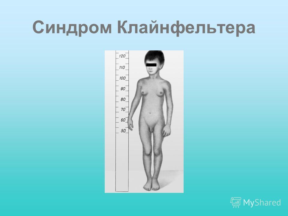 Синдром Клайнфельтера