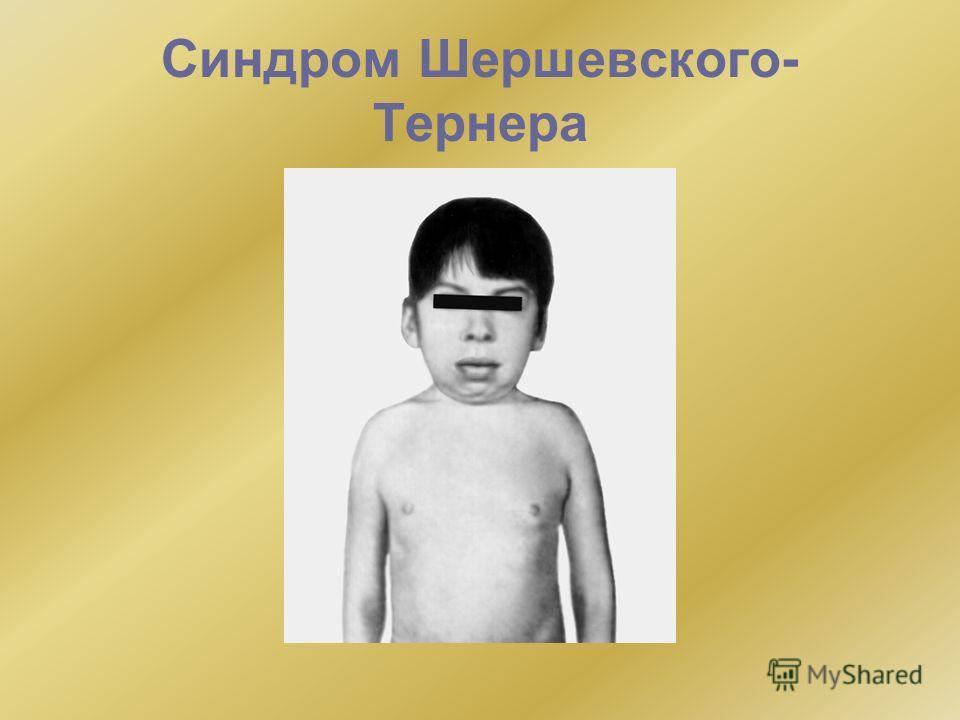Синдром Шершевского- Тернера