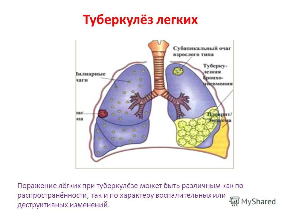 Туберкулёз легких Поражение лёгких при туберкулёзе может быть различным как по распространённости, так и по характеру воспалительных или деструктивных изменений.
