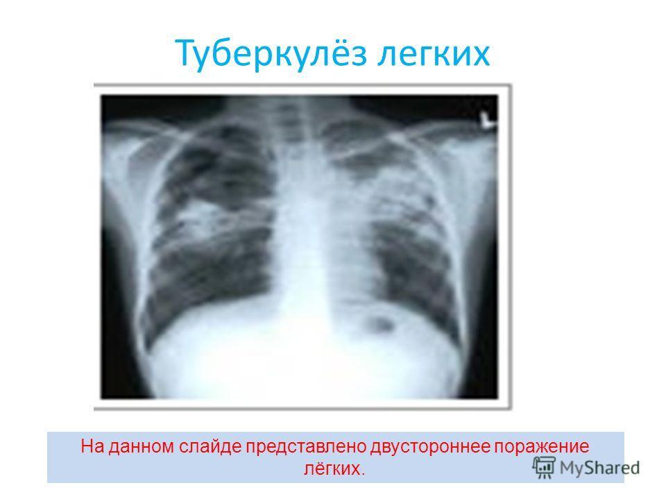Туберкулёз легких На данном слайде представлено двустороннее поражение лёгких.