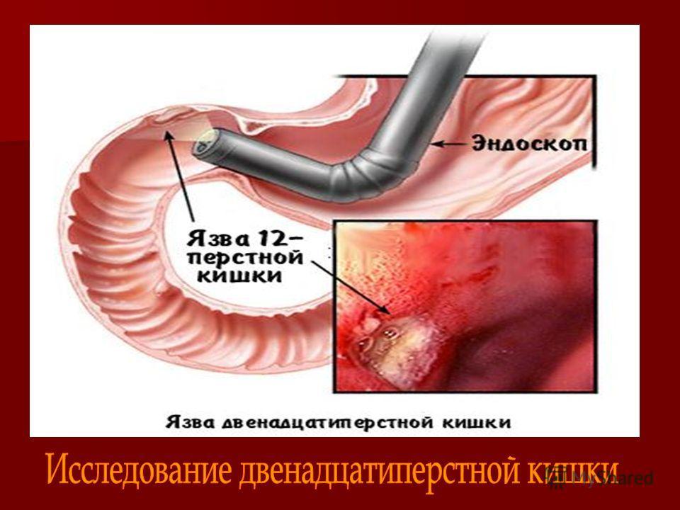 Направление на эндоскопическое исследование желудка и дпк