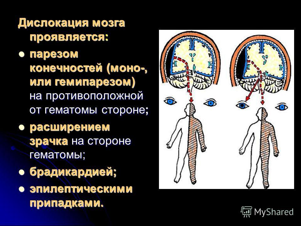 Дислокация мозга проявляется: парезом конечностей (моно-, или гемипарезом) на противоположной от гематомы стороне; парезом конечностей (моно-, или гемипарезом) на противоположной от гематомы стороне; расширением зрачка на стороне гематомы; расширение