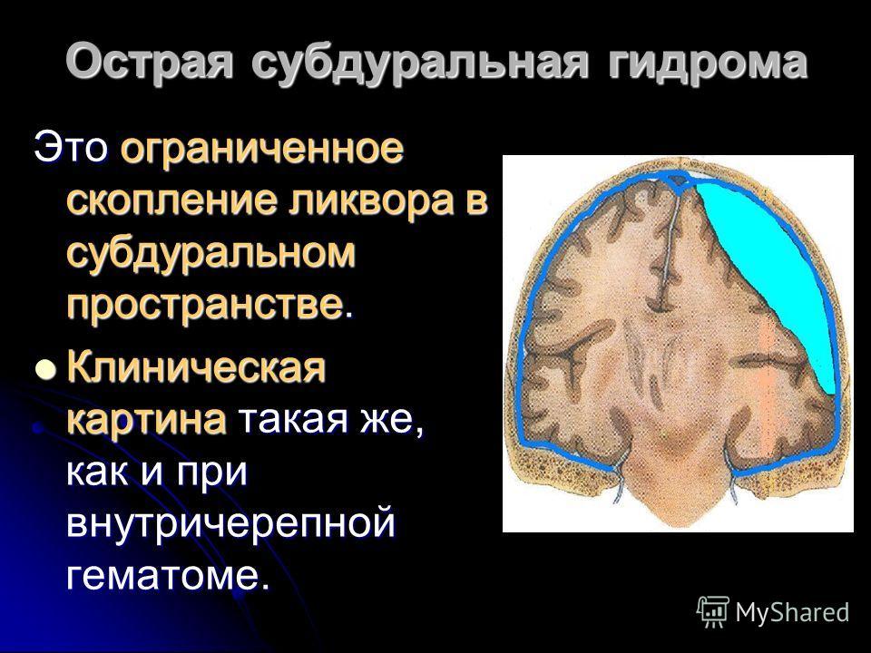 Острая субдуральная гидрома Это ограниченное скопление ликвора в субдуральном пространстве. Клиническая картина такая же, как и при внутричерепной гематоме. Клиническая картина такая же, как и при внутричерепной гематоме.