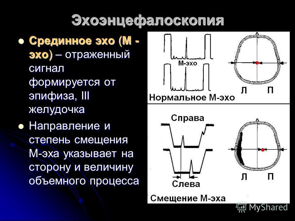 Эхоэнцефалоскопия Срединное эхо (М - эхо) – отраженный сигнал формируется от эпифиза, III желудочка Срединное эхо (М - эхо) – отраженный сигнал формируется от эпифиза, III желудочка Направление и степень смещения М-эха указывает на сторону и величину
