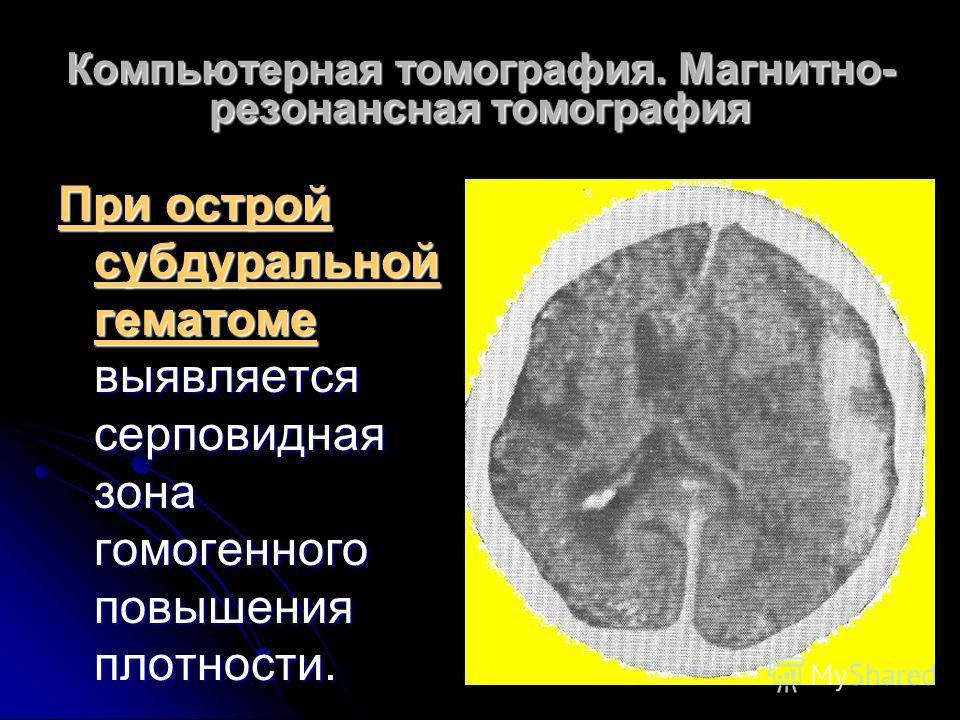 Компьютерная томография. Магнитно- резонансная томография При острой субдуральной гематоме выявляется серповидная зона гомогенного повышения плотности.