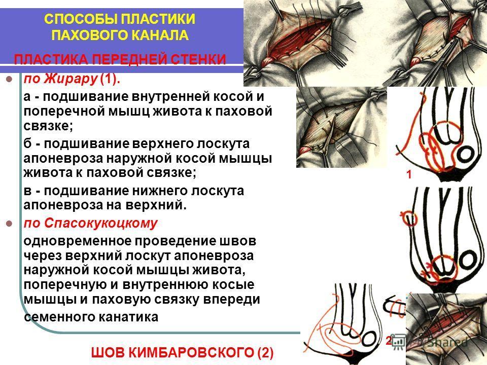 по Жирару (1). а - подшивание внутренней косой и поперечной мышц живота к паховой связке; б - подшивание верхнего лоскута апоневроза наружной косой мышцы живота к паховой связке; в - подшивание нижнего лоскута апоневроза на верхний. по Спасокукоцкому
