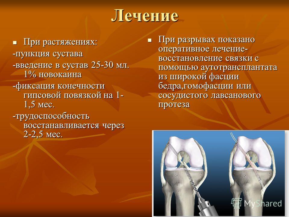 Лечение При растяжениях: При растяжениях: -пункция сустава -введение в сустав 25-30 мл. 1% новокаина -фиксация конечности гипсовой повязкой на 1- 1,5 мес. -трудоспособность восстанавливается через 2-2,5 мес. При разрывах показано оперативное лечение-
