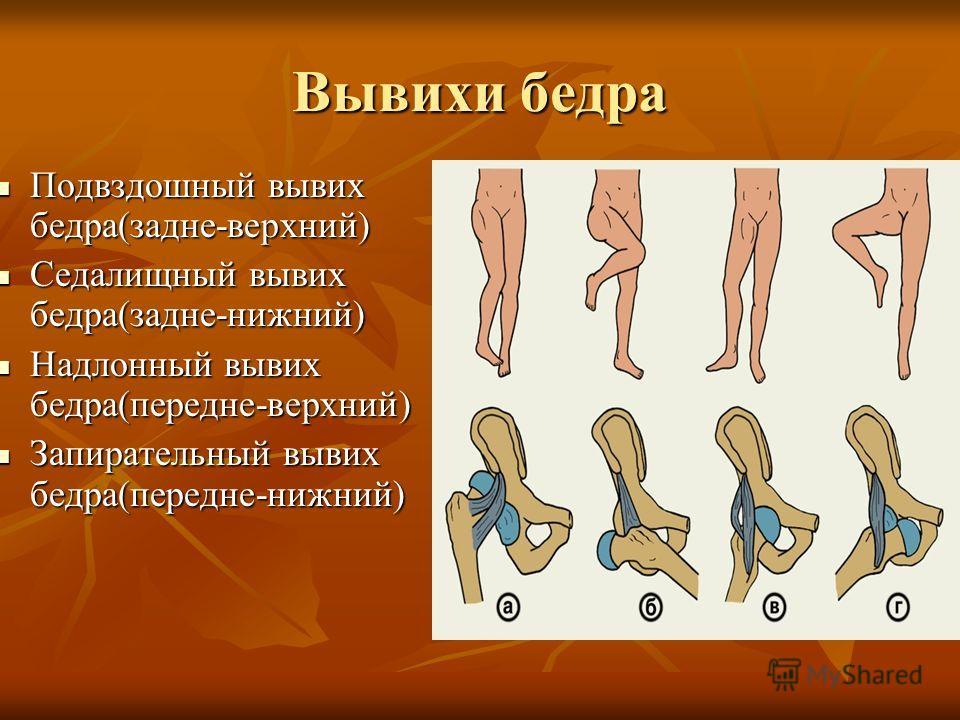 вывих тазобедренный сустав симптомы