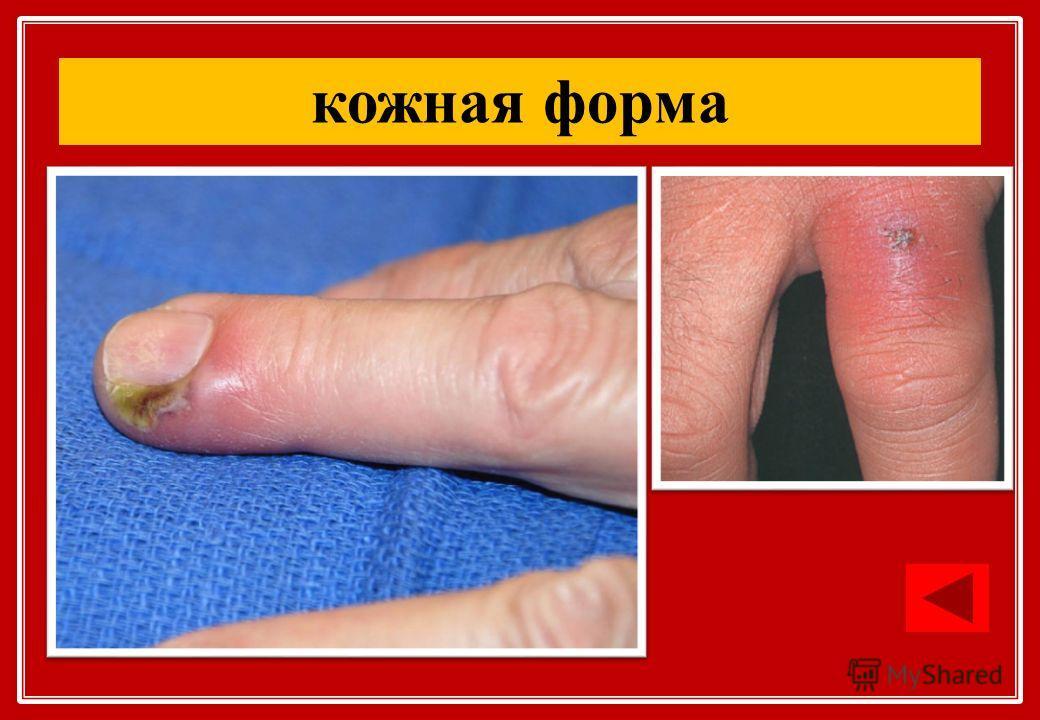 кожная форма