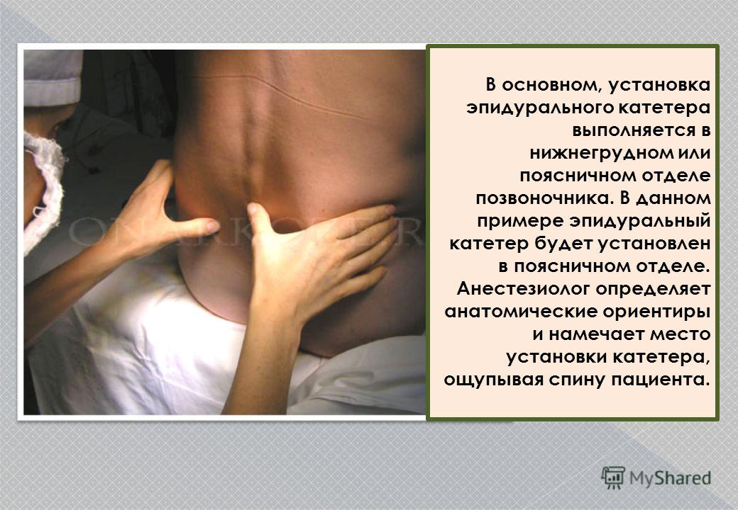 В основном, установка эпидурального катетера выполняется в нижнем грудном или поясничном отделе позвоночника. В данном примере эпидуральный катетер будет установлен в поясничном отделе. Анестезиолог определяет анатомические ориентиры и намечает место