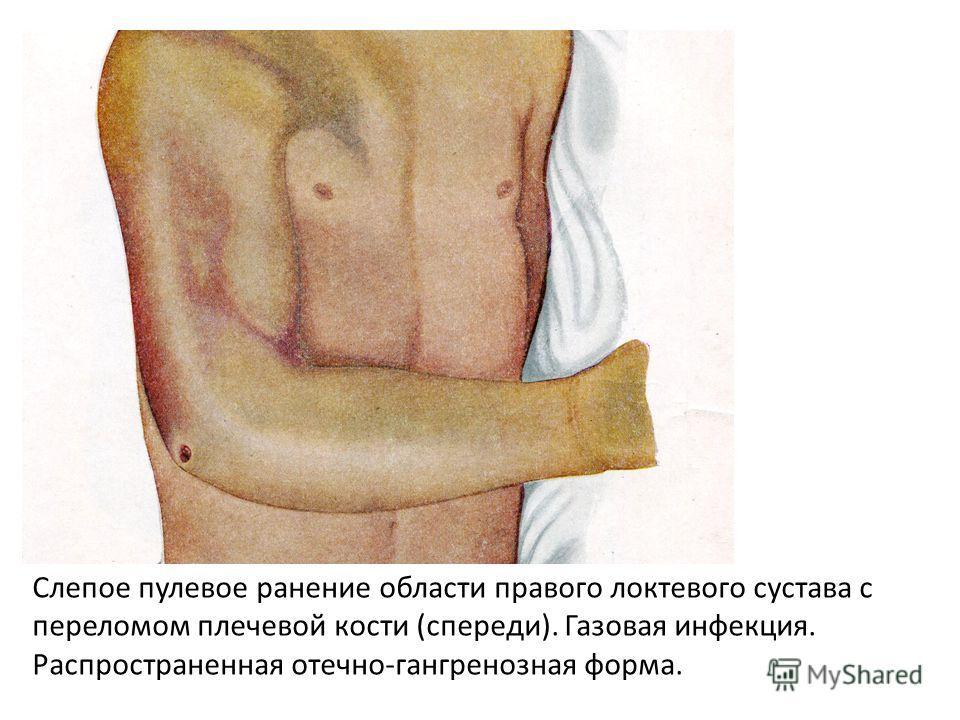 Слепое пулевое ранение области правого локтевого сустава с переломом плечевой кости (спереди). Газовая инфекция. Распространенная отечно-гангренозная форма.