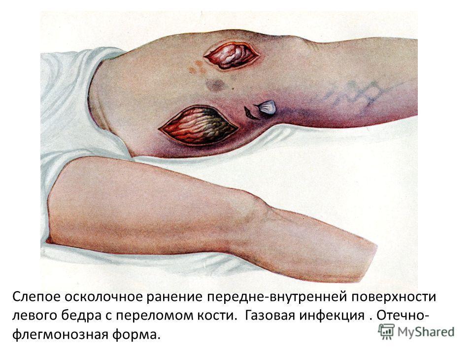 Слепое осколочное ранение передне-внутренней поверхности левого бедра с переломом кости. Газовая инфекция. Отечно- флегмонозная форма.