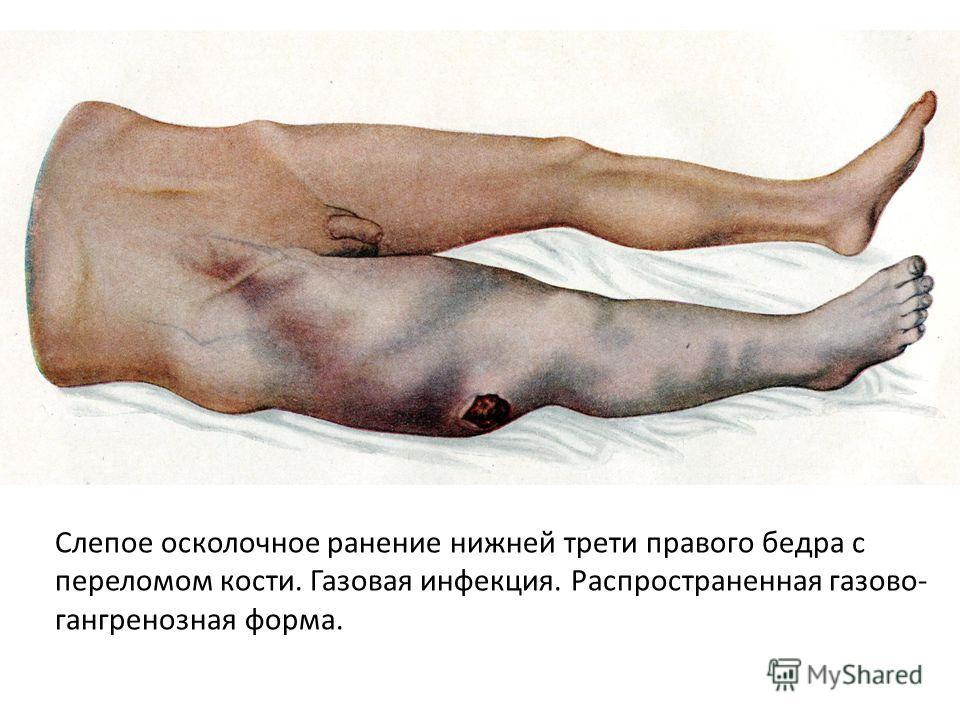 Слепое осколочное ранение нижней трети правого бедра с переломом кости. Газовая инфекция. Распространенная газово- гангренозная форма.