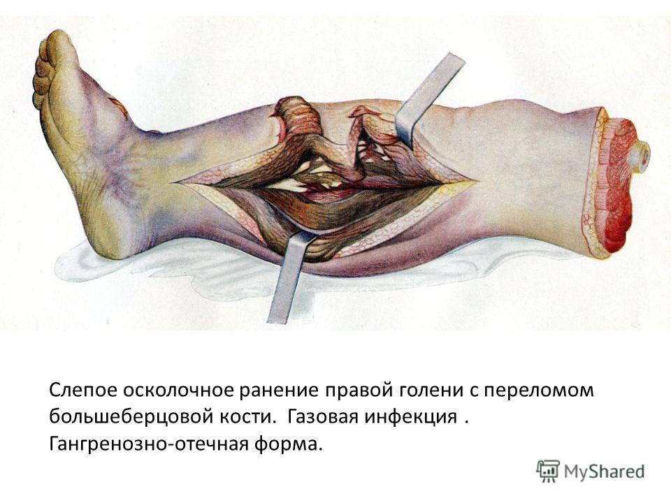 Слепое осколочное ранение правой голени с переломом большеберцовой кости. Газовая инфекция. Гангренозно-отечная форма.