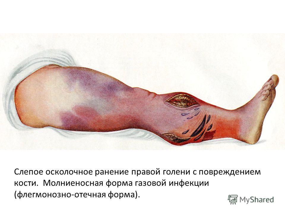 Слепое осколочное ранение правой голени с повреждением кости. Молниеносная форма газовой инфекции (флегмонозно-отечная форма).