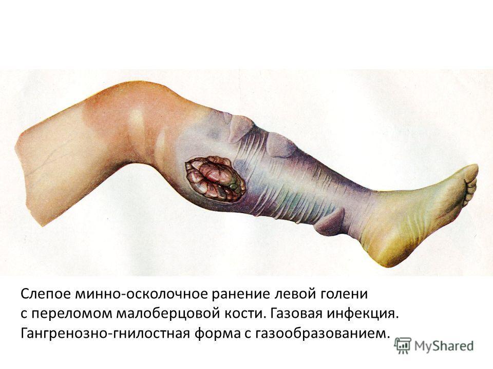 Слепое минно-осколочное ранение левой голени с переломом малоберцовой кости. Газовая инфекция. Гангренозно-гнилостная форма с газообразованием.