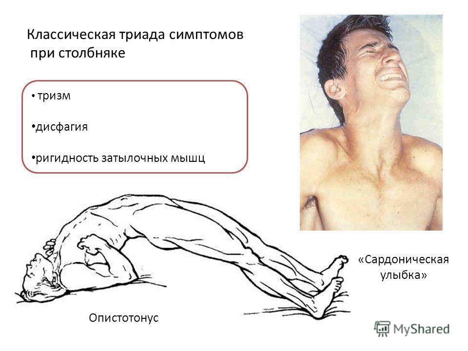 «Сардоническая улыбка» Опистотонус тризм дисфагия ригидность затылочных мышц Классическая триада симптомов при столбняке