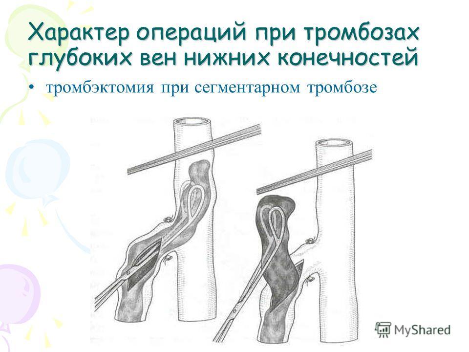 Характер операций при тромбозах глубоких вен нижних конечностей тромбэктомия при сегментарном тромбозе