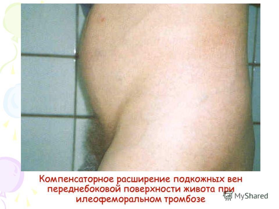 Компенсаторное расширение подкожных вен переднебоковой поверхности живота при илеофеморальном тромбозе