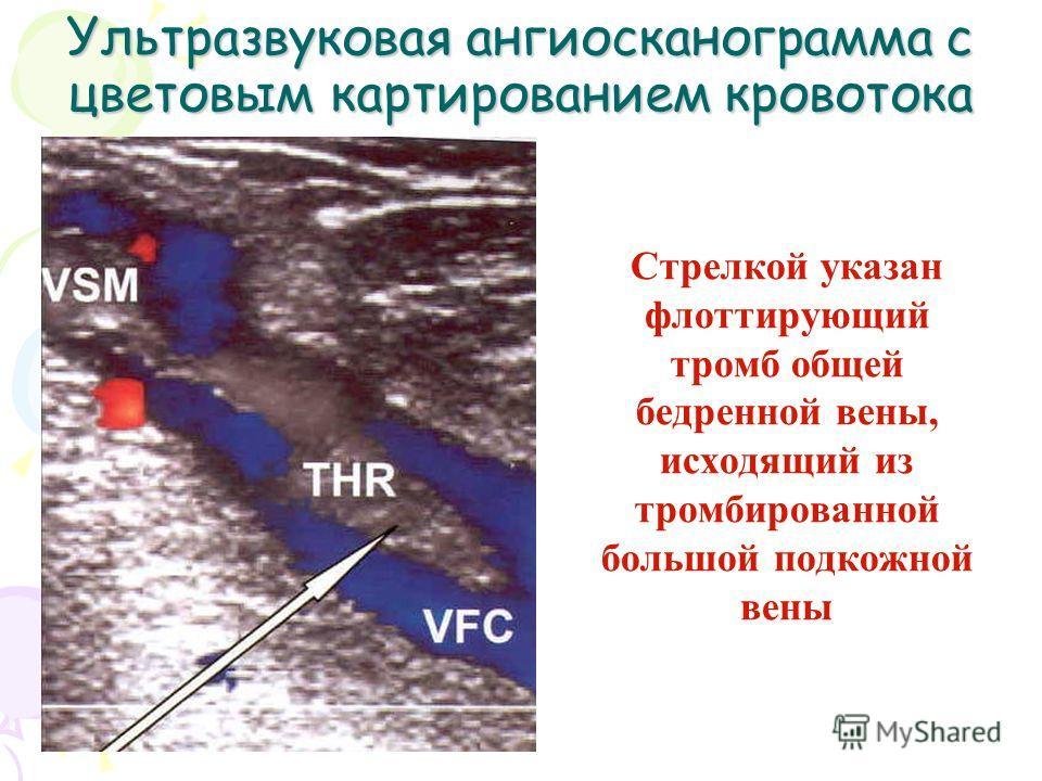 Ультразвуковая ангиосканограмма с цветовым картированием кровотока Стрелкой указан флотирующий тромб общей бедренной вены, исходящий из тромбированной большой подкожной вены