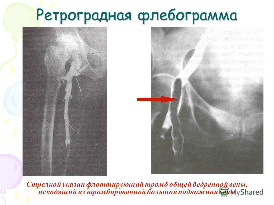 Ретроградная флебограмма Стрелкой указан флотирующий тромб общей бедренной вены, исходящий из тромбированной большой подкожной вены