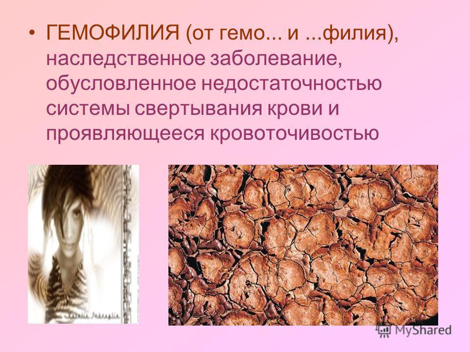 ГЕМОФИЛИЯ (от гемо... и...филия), наследственное заболевание, обусловленное недостаточностью системы свертывания крови и проявляющееся кровоточивостью