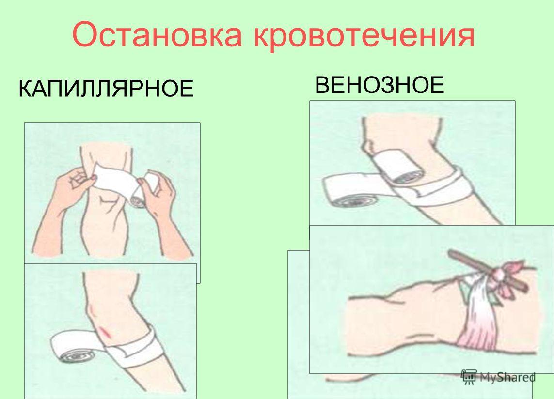 Остановка кровотечения КАПИЛЛЯРНОЕ ВЕНОЗНОЕ