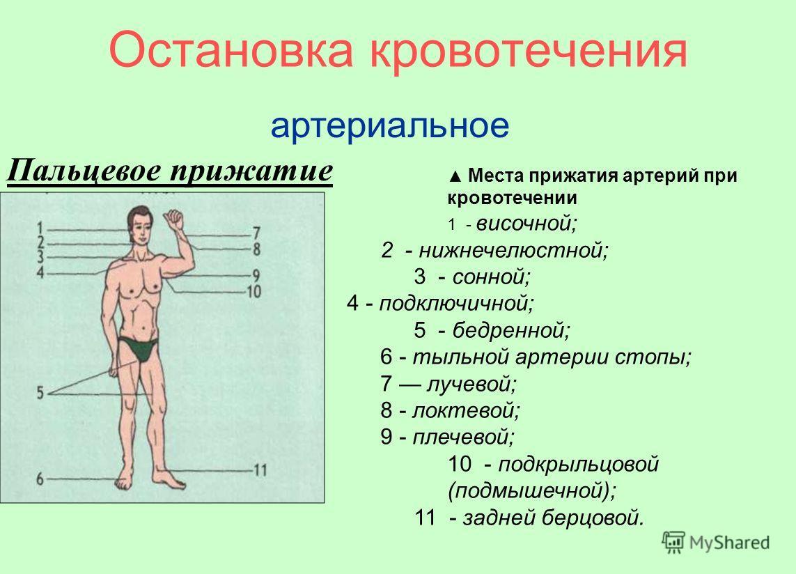 Остановка кровотечения артериальное Пальцевое прижатие Места прижатия артерий при кровотечении 1 - височной; 2 - нижнечелюстной; 3 - сонной; 4 - подключичной; 5 - бедренной; 6 - тыльной артерии стопы; 7 лучевой; 8 - локтевой; 9 - плечевой; 10 - подкр