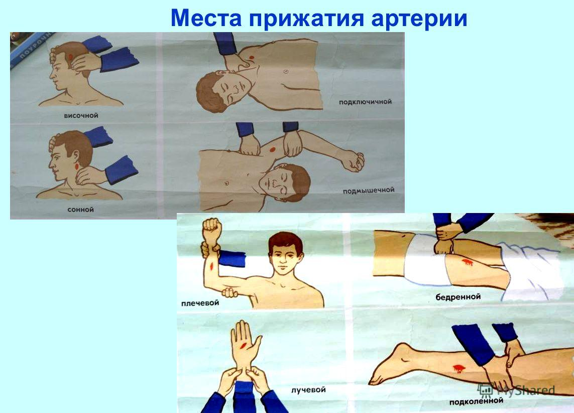 Места прижатия артерии