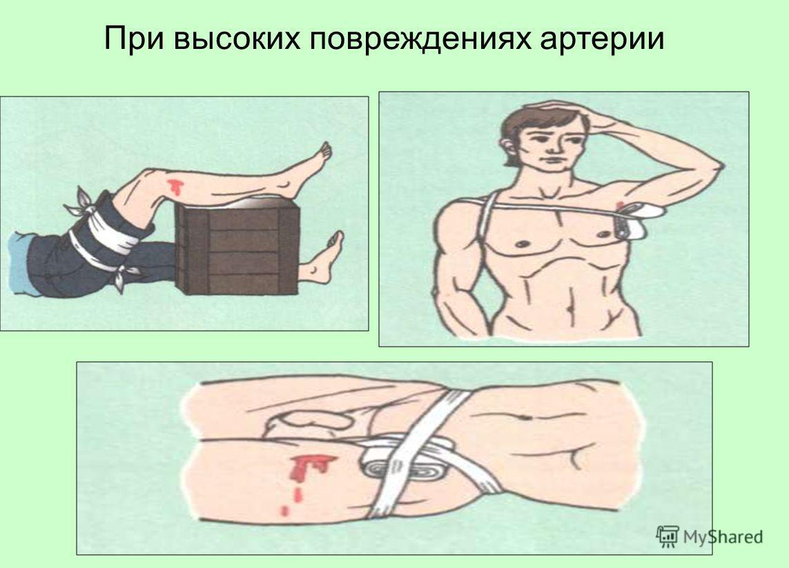 При высоких повреждениях артерии