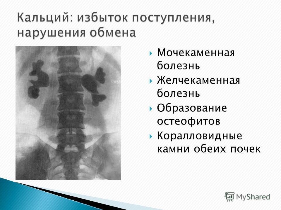 Мочекаменная болезнь Желчекаменная болезнь Образование остеофитов Коралловидные камни обеих почек