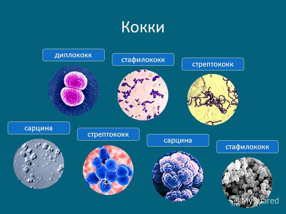 Кокки сарцинастафилококк стрептококкдиплококксарцинастрептококк