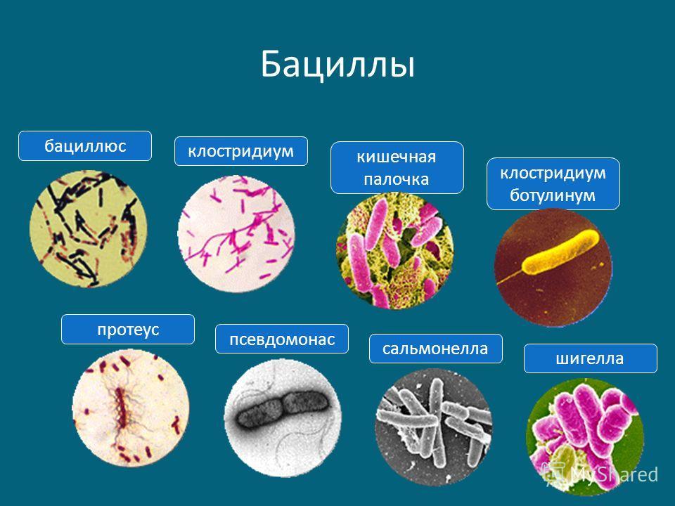 Бациллы протеуспсевдомонассальмонеллашигеллакишечная палочка клостридиум ботулинум клостридиумбациллюс