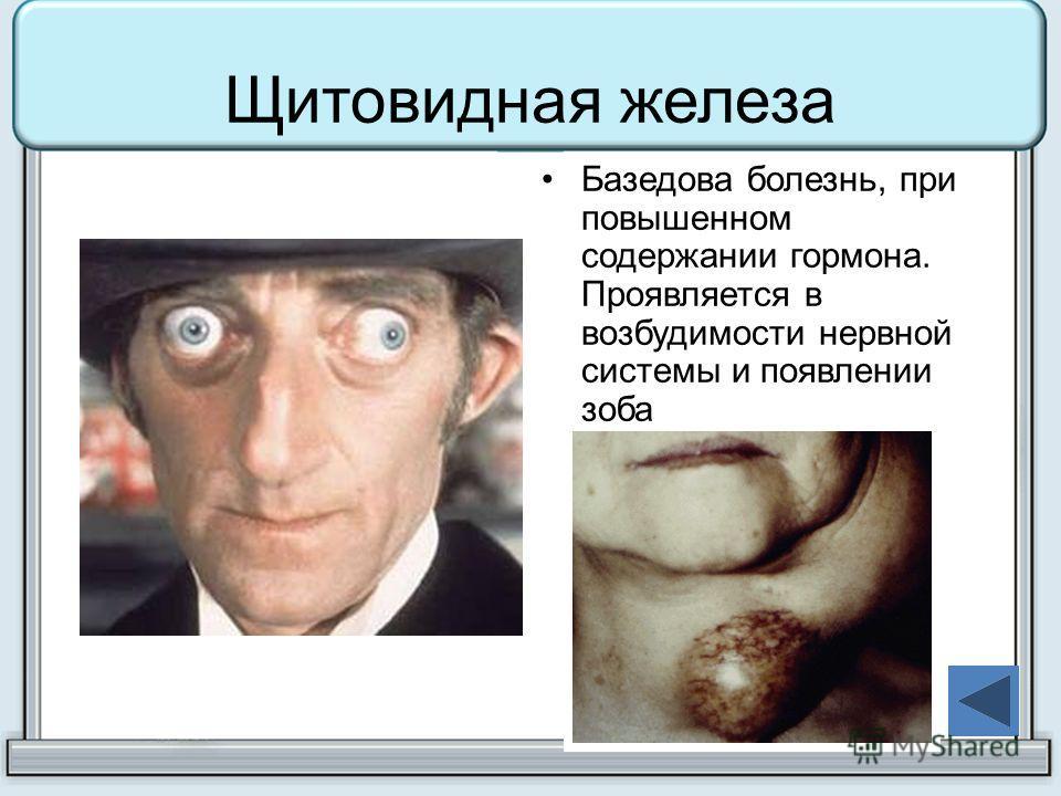 Щитовидная железа Базедова болезнь, при повышенном содержании гормона. Проявляется в возбудимости нервной системы и появлении зоба