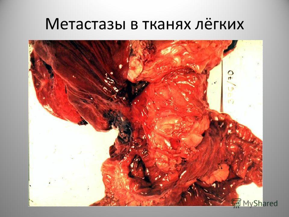 Метастазы в тканях лёгких