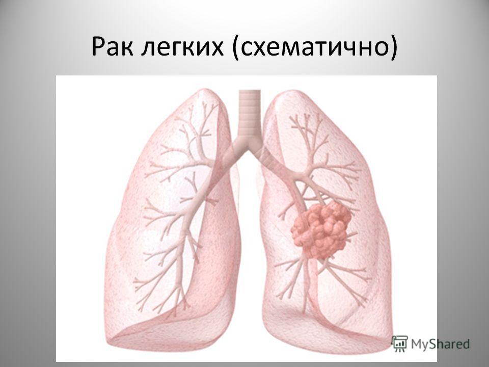 Рак легких (схематично)