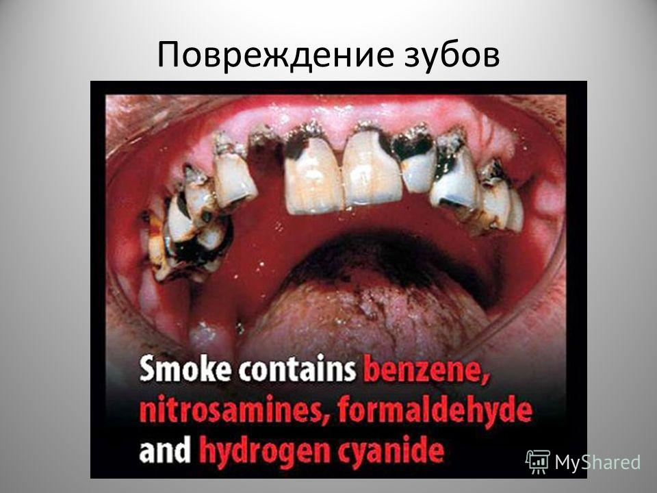 Поврежденее зубойв