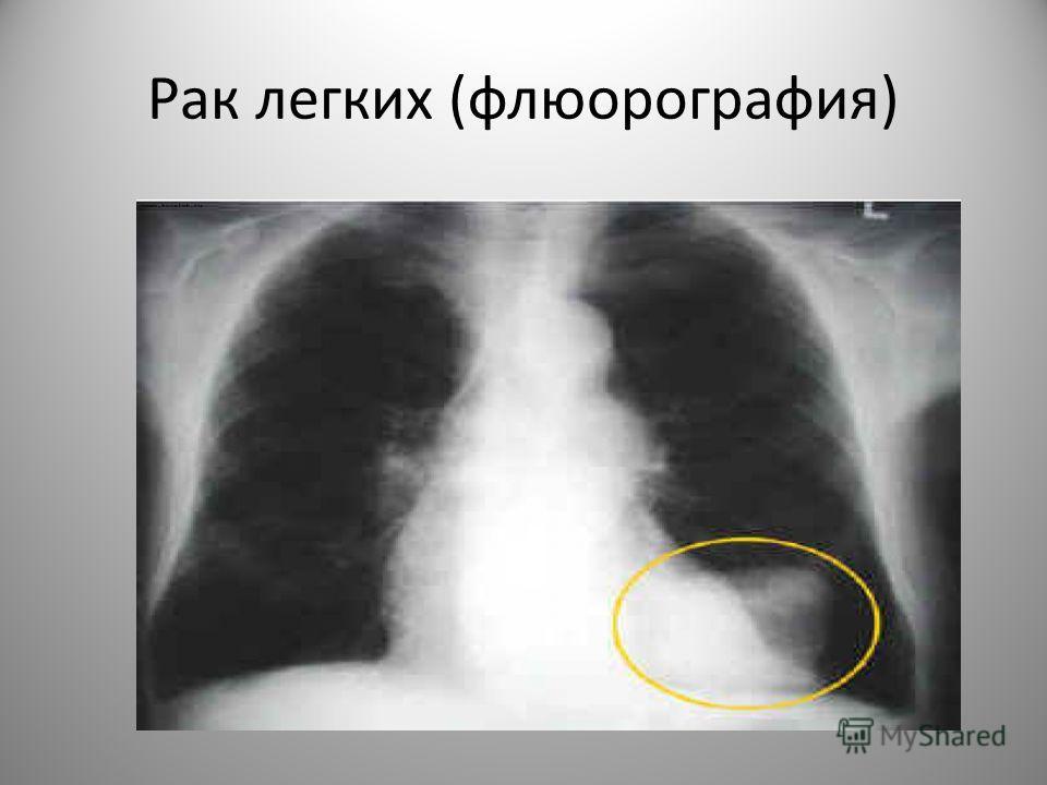 Рак легких (флюорография)