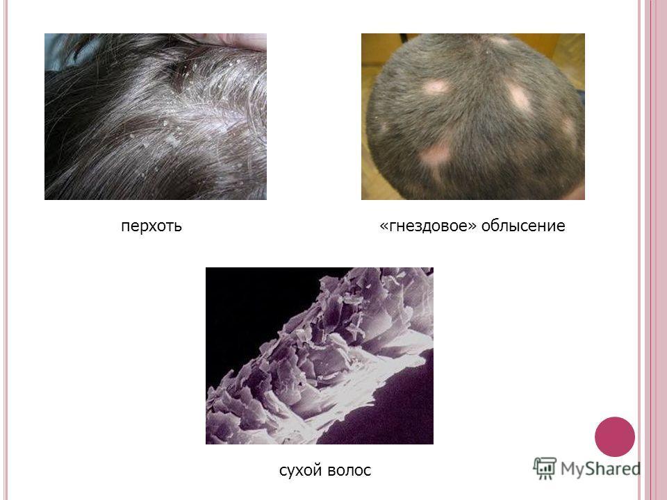 перхоть«гнездовое» облысение сухой волос