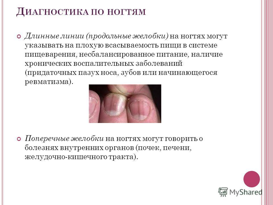Д ИАГНОСТИКА ПО НОГТЯМ Длинные линии (продольные желобки) на ногтях могут указывать на плохую всасываемость пищи в системе пищеварения, несбалансированное питание, наличие хронических воспалительных заболеваний (придаточных пазух носа, зубов или начи