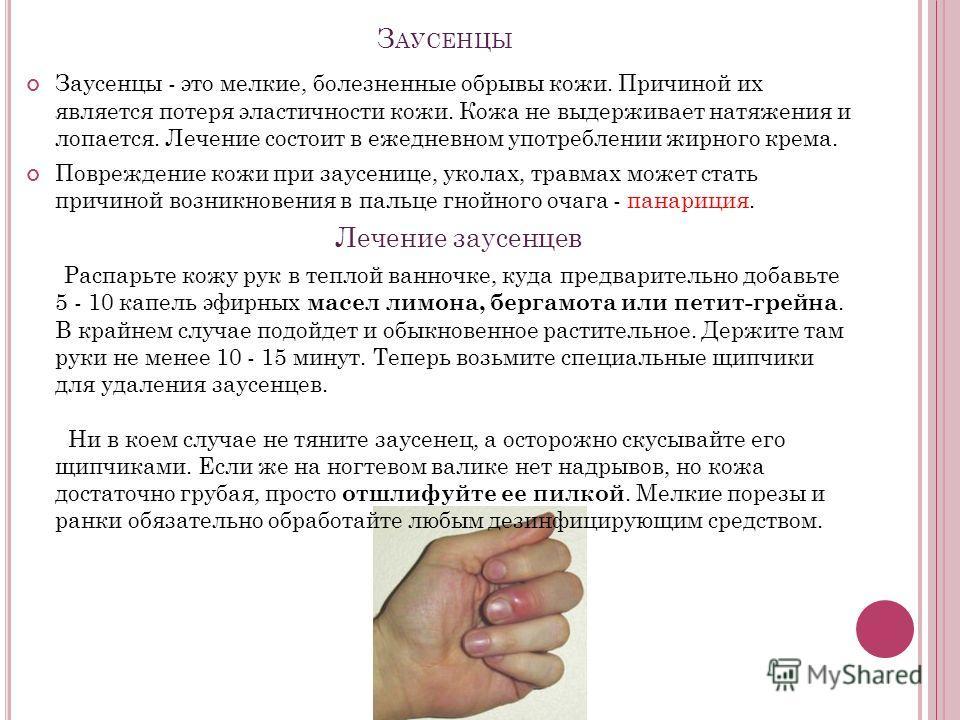 З АУСЕНЦЫ Заусенцы - это мелкие, болезненные обрывы кожи. Причиной их является потеря эластичности кожи. Кожа не выдерживает натяжения и лопается. Лечение состоит в ежедневном употреблении жирного крема. Повреждение кожи при заусенице, уколах, травма