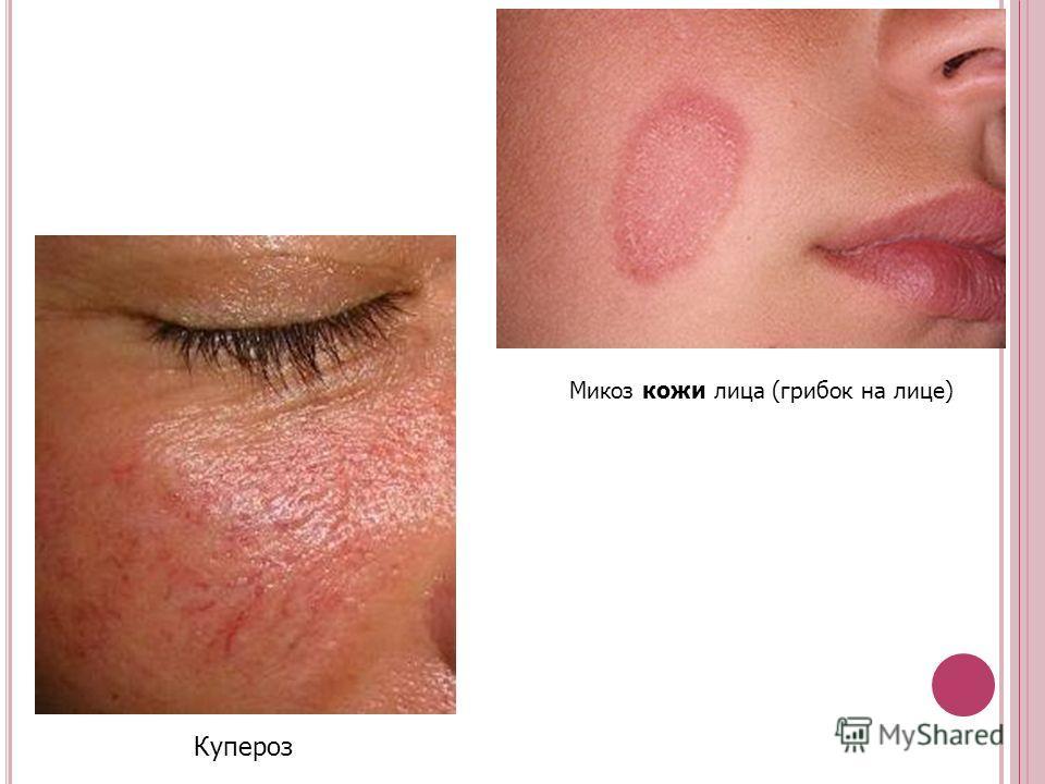 аллергия на смесь фото нутрилон