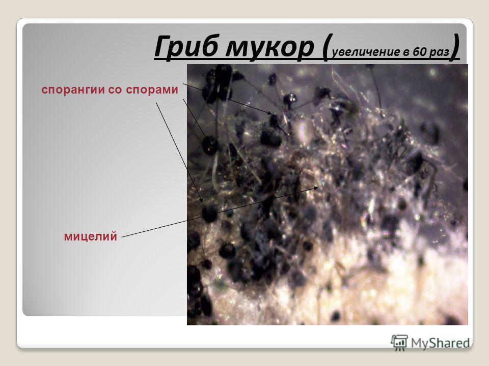Гриб мукор ( увеличение в 60 раз ) спорангии со спорами мицелий
