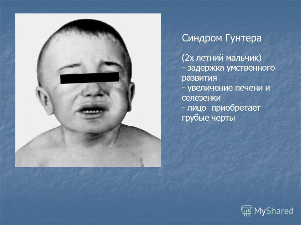 Синдром Гунтера (2 х летний мальчик) - задержка умственного развития - увеличение печени и селезенки - лицо приобретает грубые черты