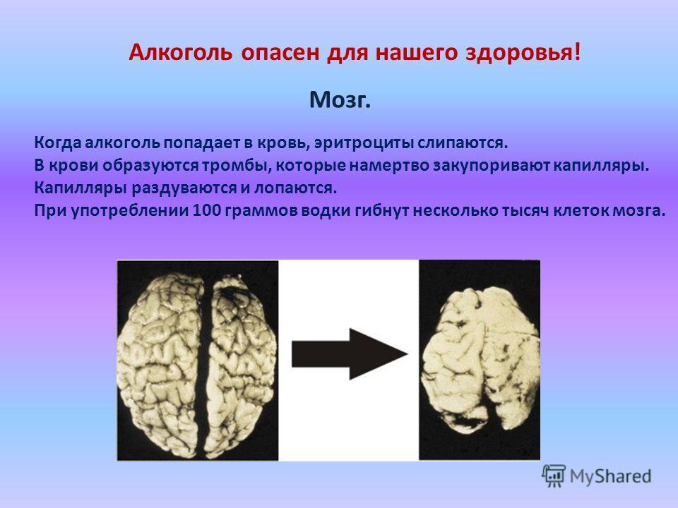 Алкоголь опасен для нашего здоровья! Мозг. Когда алкоголь попадает в кровь, эритроциты слипаются. В крови образуются тромбы, которые намертво закупоривают капилляры. Капилляры раздуваются и лопаются. При употреблении 100 граммов водки гибнут нескольк