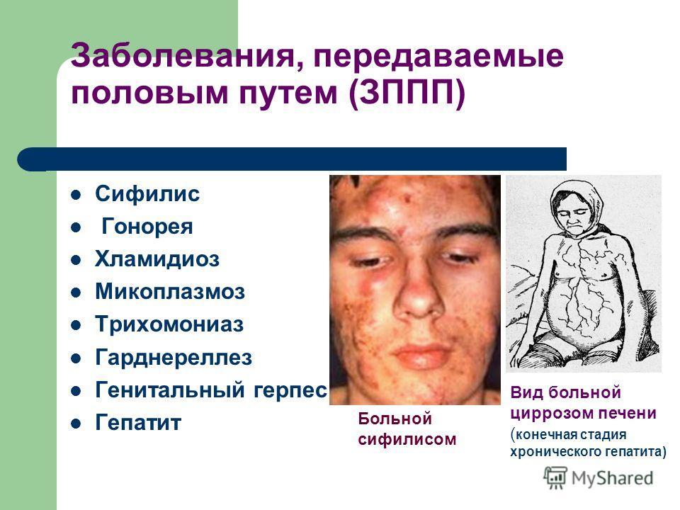 Заболевания, передаваемые половым путем (ЗППП) Сифилис Гонорея Хламидиоз Микоплазмоз Трихомониаз Гарднереллез Генитальный герпес Гепатит Вид больной циррозом печени ( конечная стадия хронического гепатита) Больной сифилисом