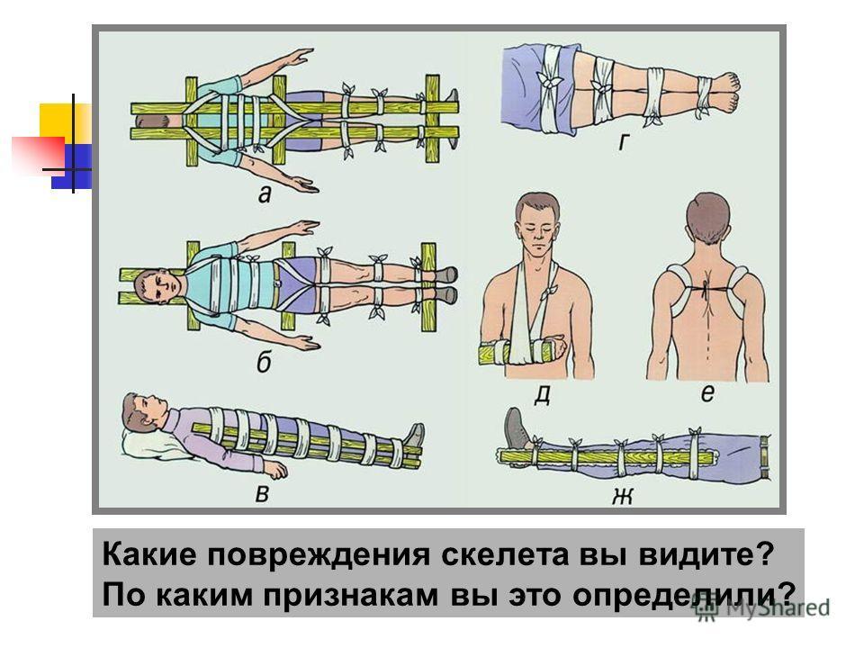 Какие повреждения скелета вы видите? По каким признакам вы это определили?