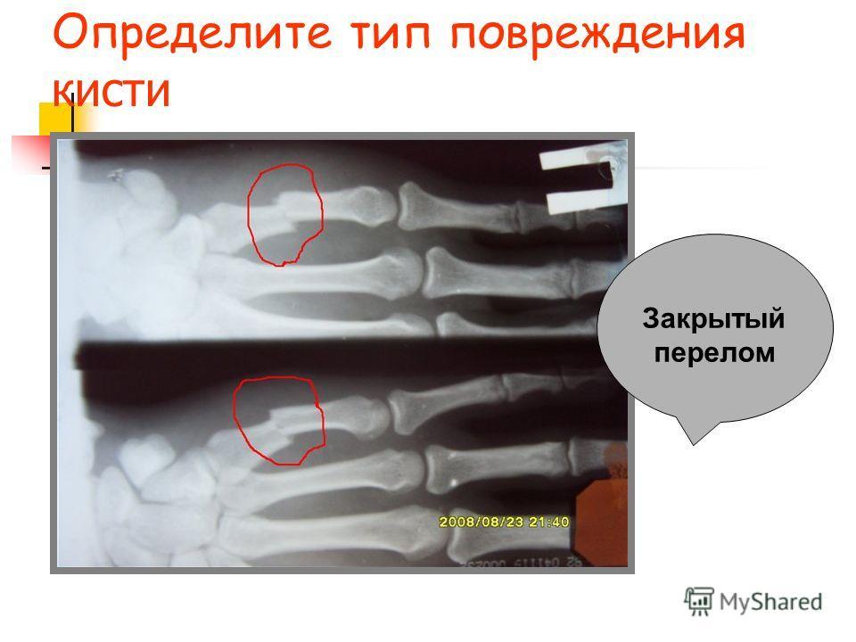 Определите тип повреждения кисти Закрытый перелом